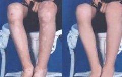 肢端型白癜风有哪些症状
