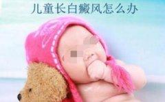 儿童白癜风治疗应注意些什么